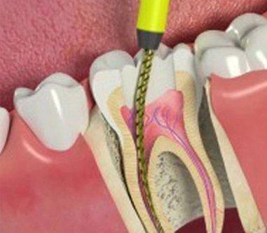 Mona Vale Dental