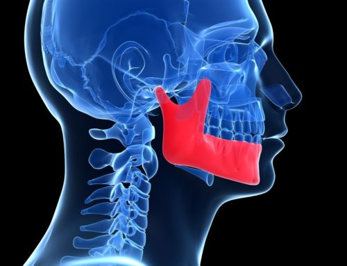 Jaw reconstruction using 3D printing technology (new dental innovations):
