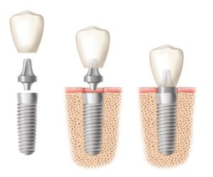 What is a dental implant | Mna V
