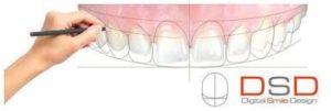 3D dentistry