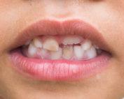 Chalky teeth in children