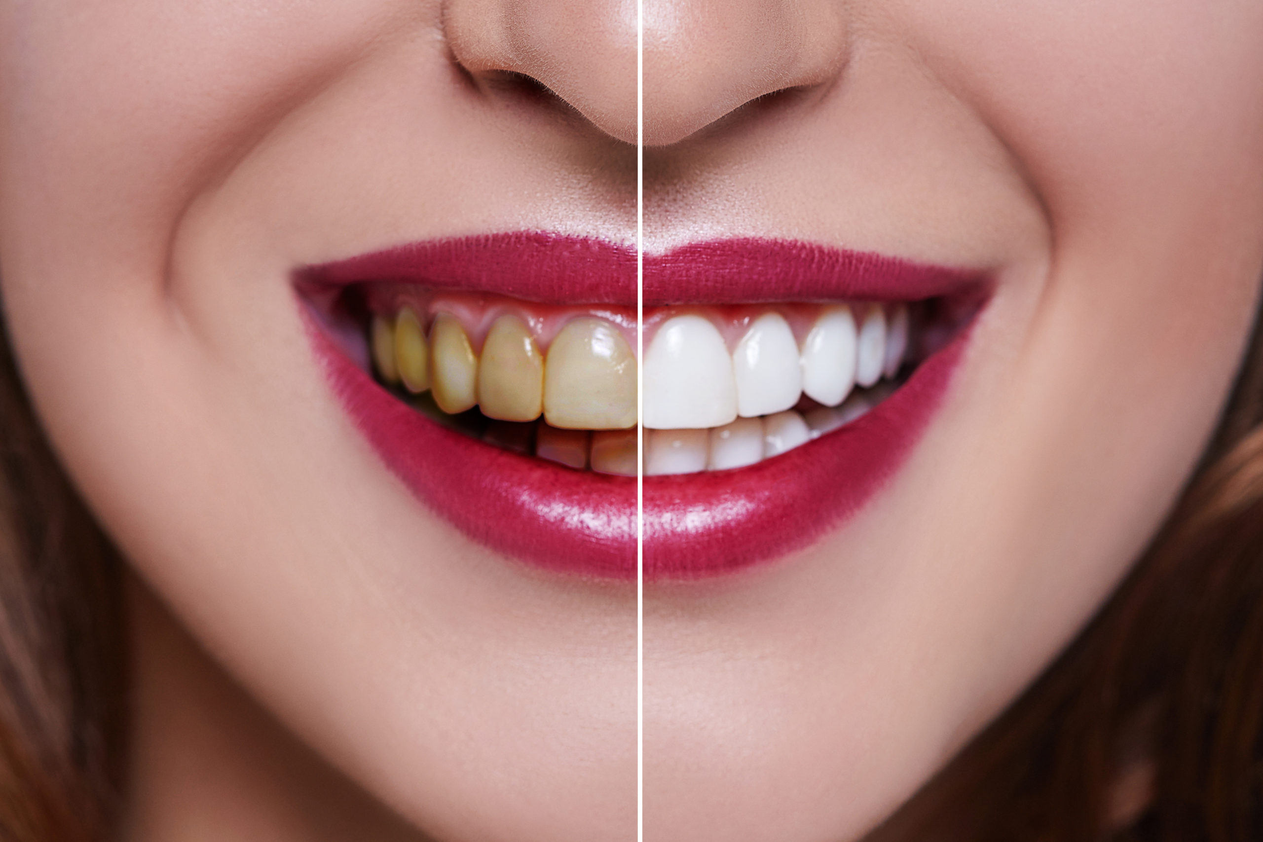 How long do veneers last? Hint: it depends on the material