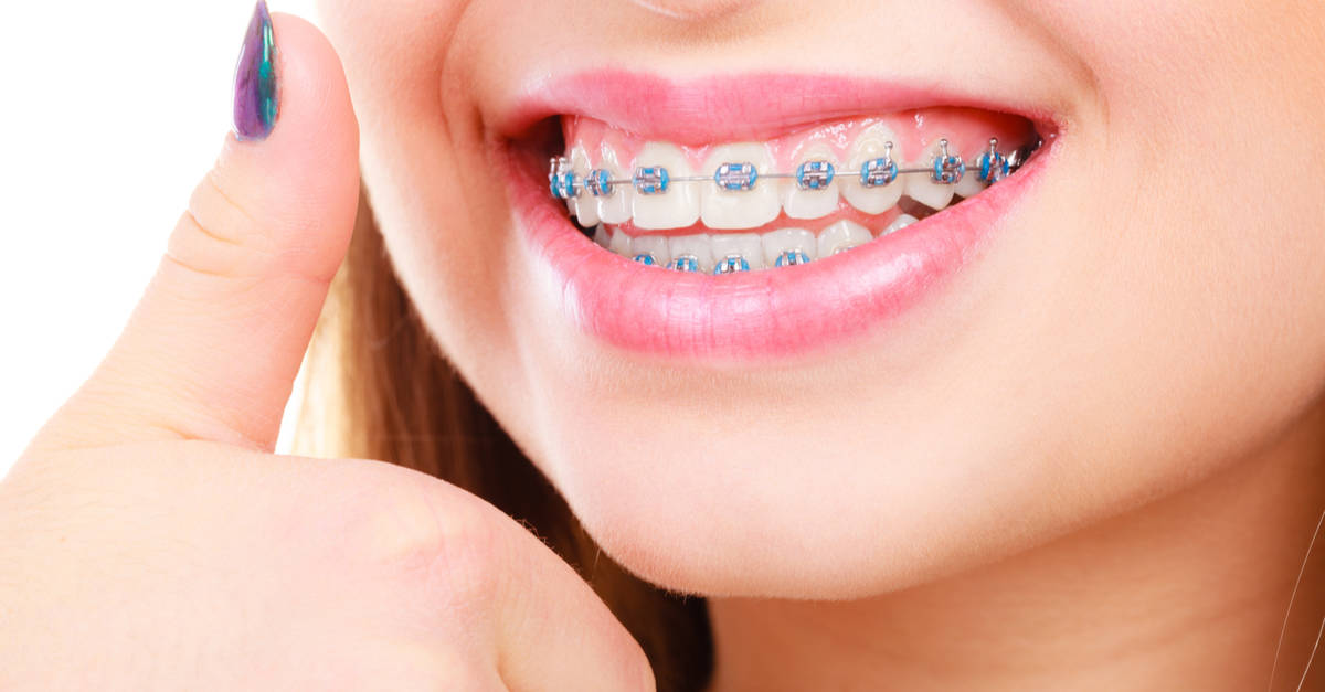 Invisalign vs braces (which treatment is better for my needs?)
