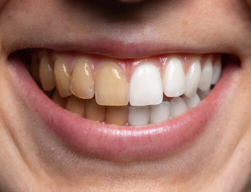 Are At-Home Teeth Whitening Kits Safe/Good?
