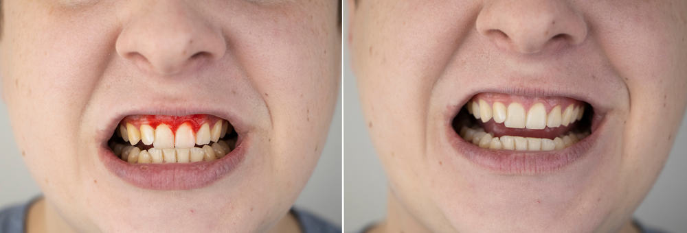 catch periodontal symptoms early for effective treatment