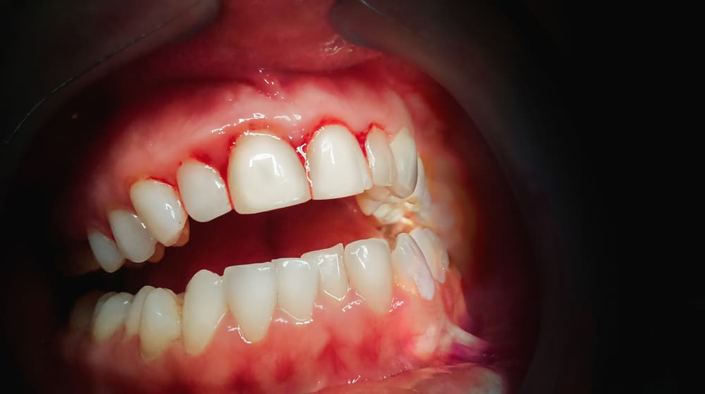 mild and advanced gum disease symptoms