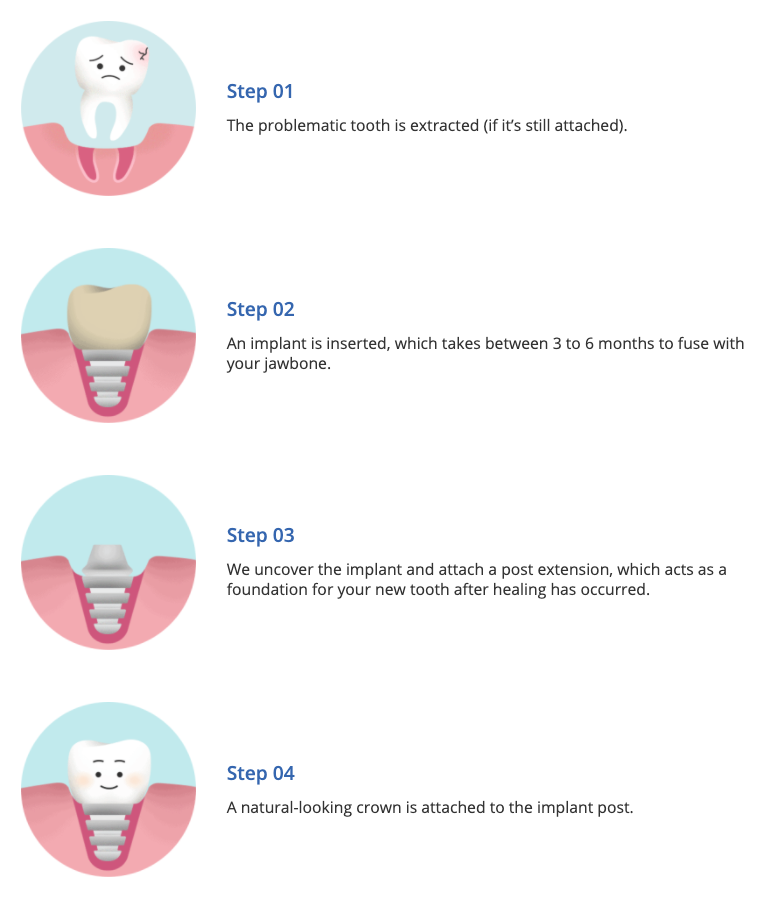 About the tooth replacement procedure (dental implants)