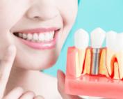 dental implants cost Sydney